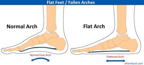 Ft Sintesis Flatshoes flat or pes planus or fallen arches causes symptoms treatment