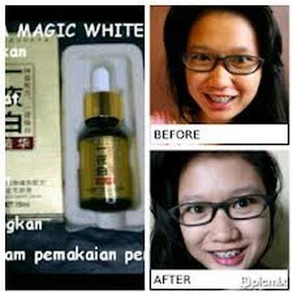 Serum White Magic Korea Paket Perawatan Wajah korean wajah putih merona merah ala artis korea