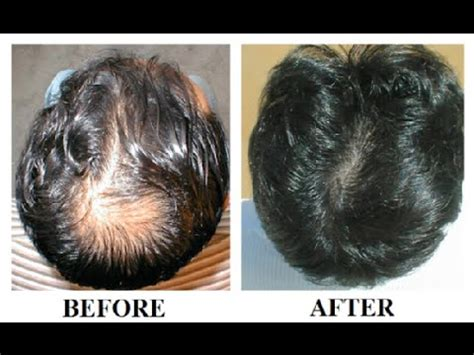 does reducing 5ar regrow hair change your lifestyle with ritualworcester com