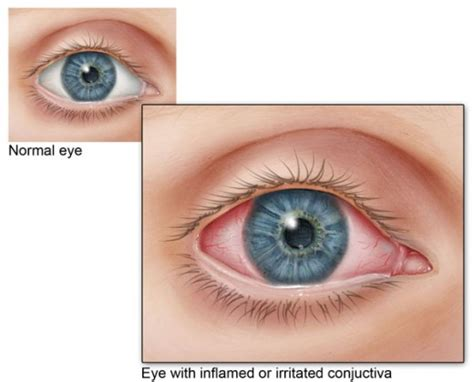 pink eye images pink eye sore or conjunctivitis causes and home
