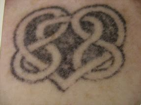 alex trivantage laser tattoo removal alex trivantage syneron candela