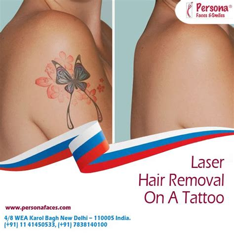 best way to remove tattoo without laser 7 best laser hair removal images on laser hair