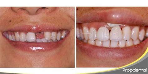 la dinasta del diente restaurar la p 233 rdida de un diente a trav 233 s del implante