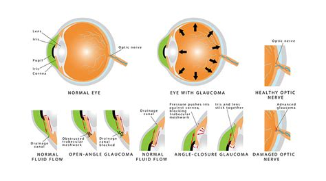 glaucoma treatment glaucoma treatment laser surgery specialists