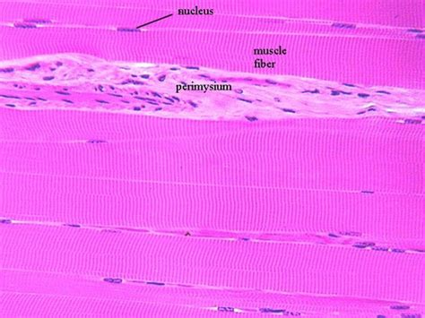 skeletal muscle longitudinal section striated skeletal muscle microanatomy web atlas gwen