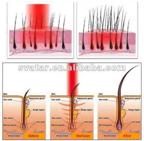 light therapy for hair growth 10 best images about light therapy on