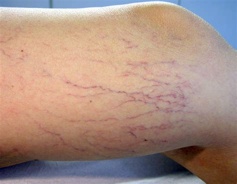 vene varicose interne varicosit 233 s docteur val 233 rie thirion