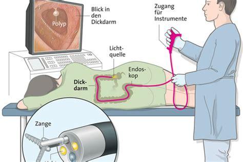 blut im stuhl nach darmspiegelung check up koloskopie schweizer illustrierte