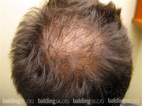 women balding on crown densely packed hair transplant with photos wrassman m