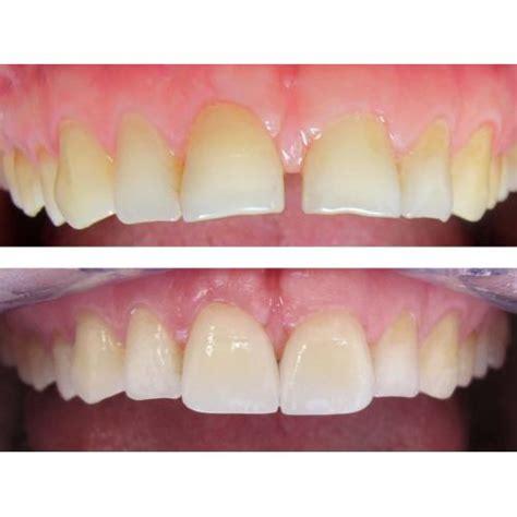 building   worn teeth devon street dental clinic