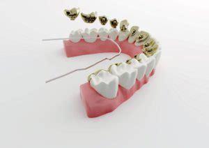 apparecchio denti interno costi ortodonzia invisibile apparecchio dentale fisso interno