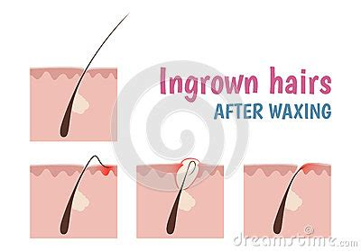how to remove engrown hair onunderwear line structure of the hair follicle stock vector image 57442148