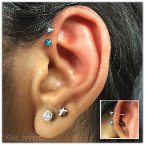 tattoo removal london ontario forward helix from neometal legacytattoolondon
