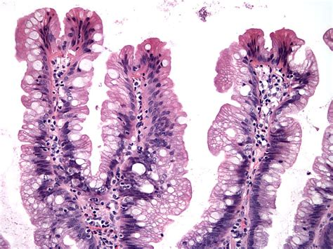 Serrated Polyp Pathology Outlines by Pathology Outlines Sessile Serrated Adenoma