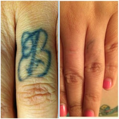 erased tattoo removal erased laser removal 65 photos 60 reviews