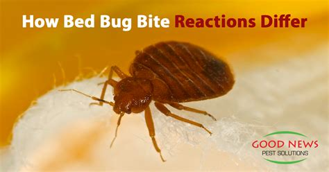 what s good for bed bugs a closer look at bed bug bites good news pest solutions