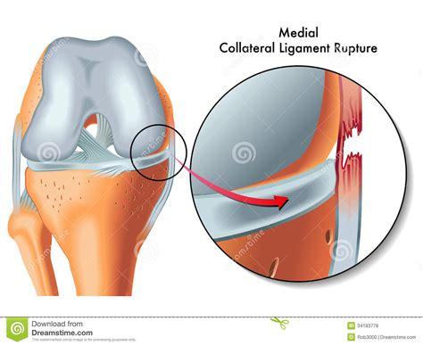 condilo femorale interno medial collateral ligament rupture stock vector