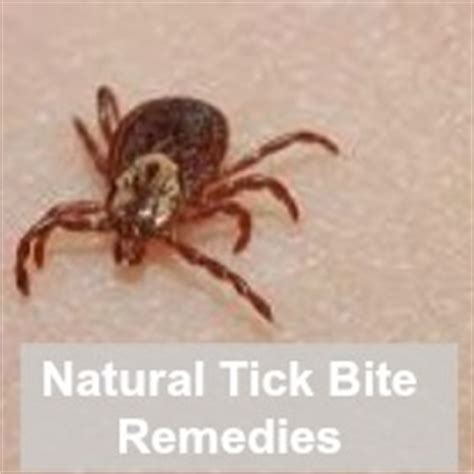 home remedies for ticks let the children play remedies for tick bites in