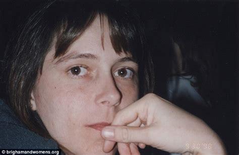 carmen tarleton carmen tarleton transplant mother of two gets face
