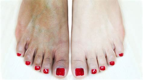whitening pedicure at home suntan removal