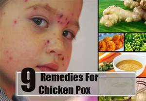 Best home remedies for chicken pox natural treatments