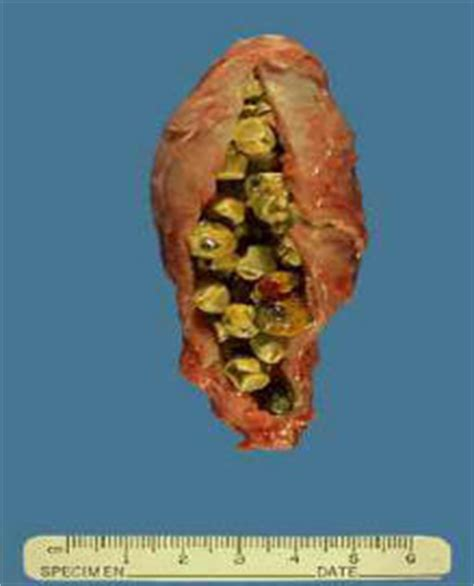 gallstones diarrhea blood stool