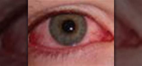 how to treat and avoid pink eye 171 diagnosis