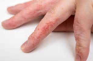 dyshidrotic eczema a malady of concerning cause and
