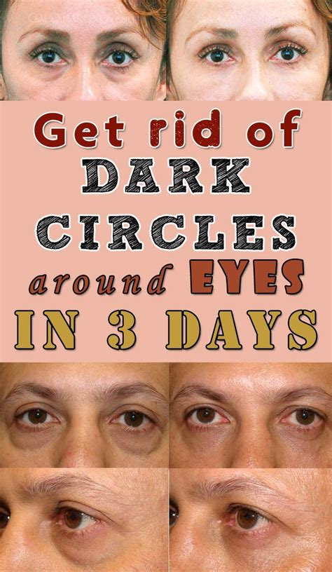 7 Tips On Getting Rid Of Circles Your by Get Rid Of Circles Around In 3 Days