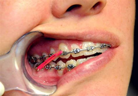braces color bands what do the elastic rubber bands on braces do ask an