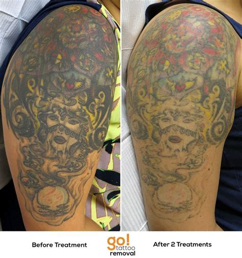 large tattoo removal 1000 images about removal in progress on