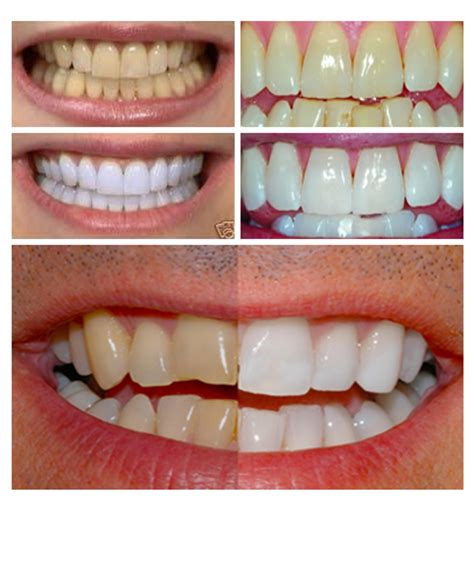 perossido di idrogeno 35 grado alimentare sbiancamento dei denti dentalsmile
