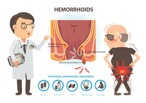 piles pictures and symptoms diagrams hemorrhoids symptoms causes treatment gi endoscopy