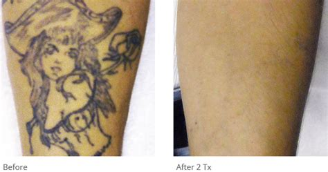 tattoo removal geelong 100 laser tattoo removal laser skin laser tattoo