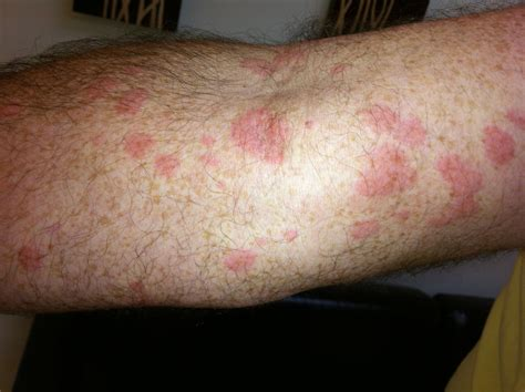 allergy treatment hives rash treatment in florida hives skin allergy