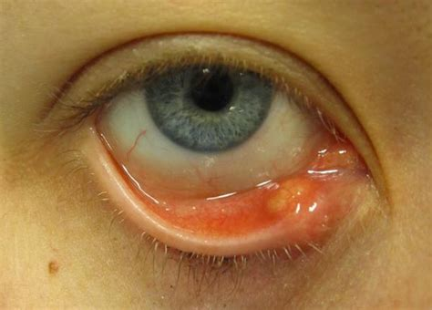 eyelid swollen swollen eyelid and now bump on eyebrow things you didn t