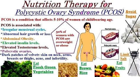 weight management medications pcos weight loss medication mloovi