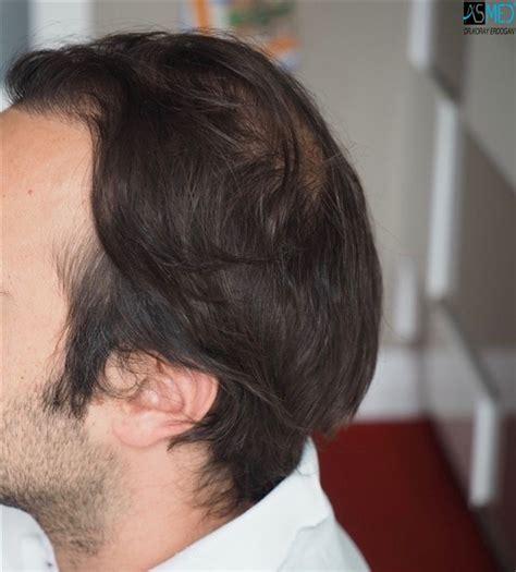 dr kieley hair restoration dr koray erdogan 4511 grafts fue front mid trapianto