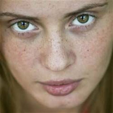 10 Ways To Get Rid Of Freckles by 116 Best Images About Treatment On Skin