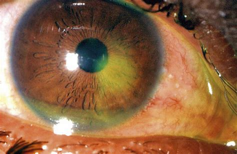 how to treat corneal abrasions visionmd