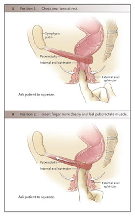 What Causes Stool Incontinence by Fecal Incontinence