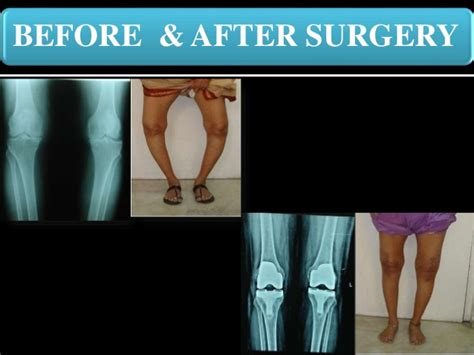 knee lift surgery before and after total knee replacement patient education