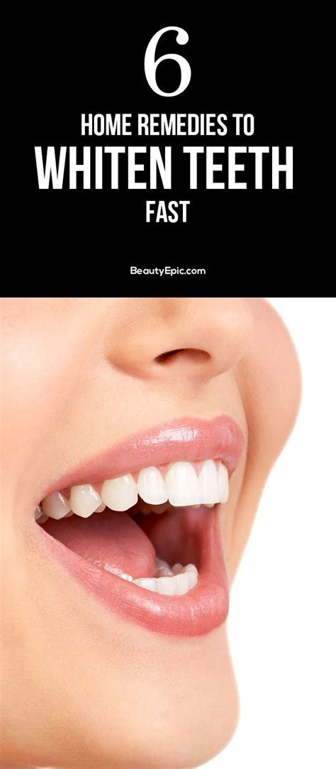 Best 25  Fast teeth whitening ideas on Pinterest   Whiter