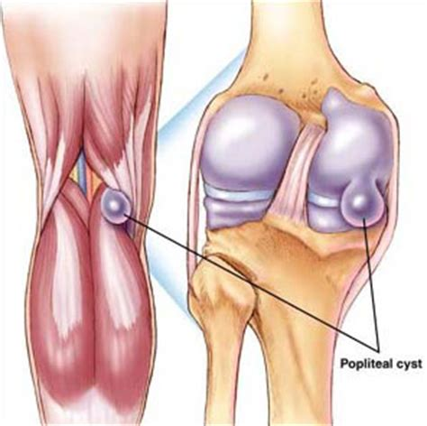 Planters Cyst by Baker S Cyst Knee Injury Knee Injuries Knee
