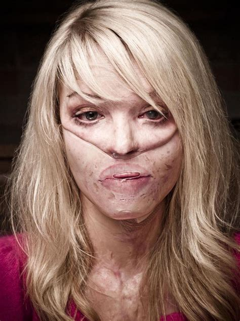 what are the scars from on katies face vanderpump rules katie piper engaged her inspirational fight back from