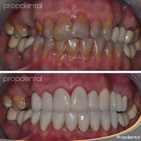 precios de fundas dentales 191 funda dental que es 191 que tipos de fundas dentales hay