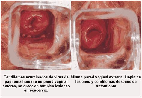 imagenes vph mujeres virus del papiloma humano vph imagenes del virus del
