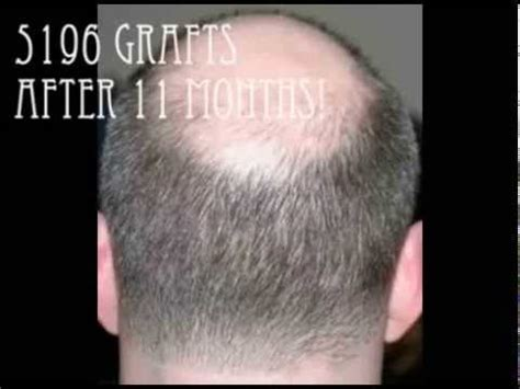 fue vs strip strip vs fue hair transplant scarring and yield which
