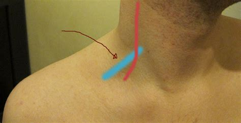swelling left side of neck above collarbone what exactly is this inflamed area of my neck neurotalk
