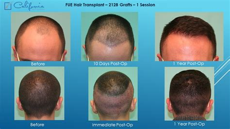 neograph timeline hair transplant surgeon follicular unit hair transplant